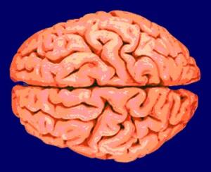 xa01_brain